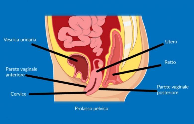 Prolasso-pelvico-cause-sintomi-e-rimedi_800x513
