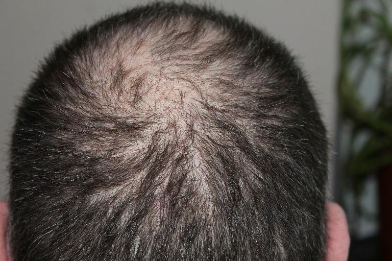i-migliori-oli-essenziali-contro-la-caduta-dei-capelli_800x533